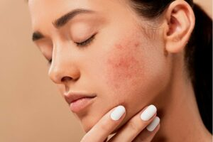 magán bőrgyógyászat budapest